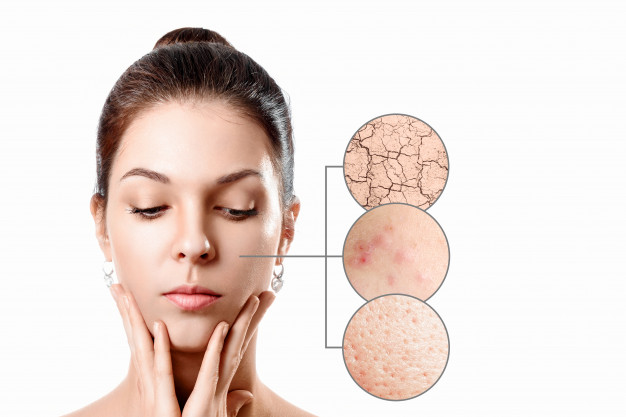 Γυναικείο πρόσωπο και τρεις παθήσεις του δέρματος